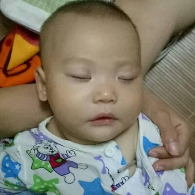 宝宝最近几天拉肚子呕吐咳嗽还有低烧,37.4左