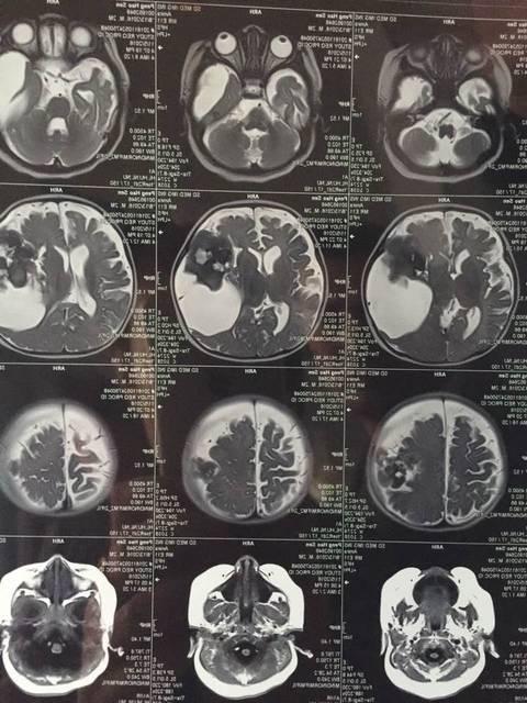 脑胶质细胞瘤的病理常识介绍