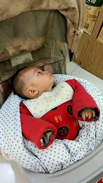 畸形的耳朵里流黄水_产前良好婴儿生下耳朵畸形医院称产检不含耳朵
