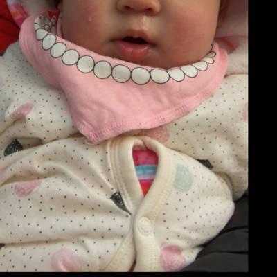 九个半月的宝宝受凉了 流鼻涕 吃药吗?还是不