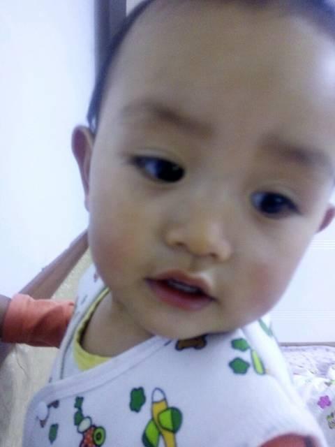 求助宝妈们_宝宝19个月脸上有白癣是怎么回事
