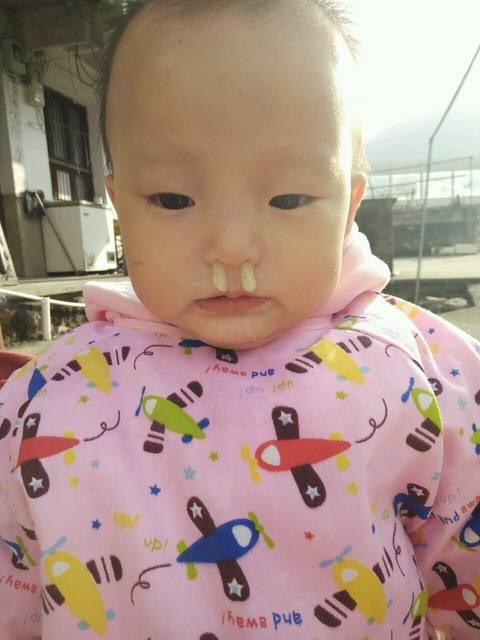 宝宝流黄鼻涕怎么回事_宝宝流黄鼻涕是怎么回