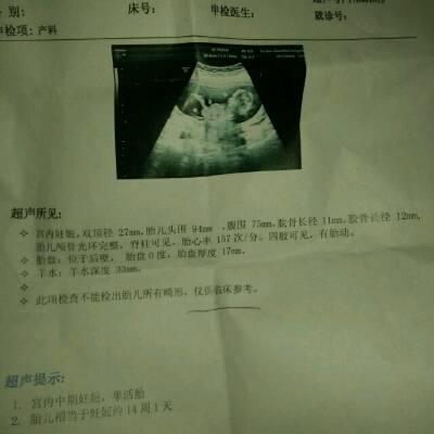 彩超胎心率是157一分钟,这个是怀的男孩,还是怀的女孩