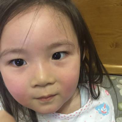 很快病毒性v很快10天了,今天带她遛弯出去,脸宝宝好得流行性感冒怎样图片