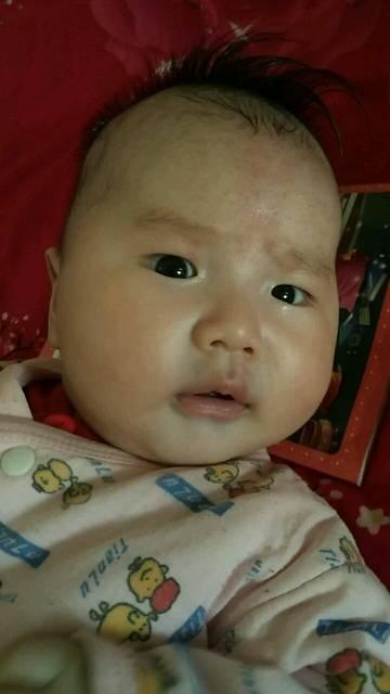 妈妈们,宝宝身上的红胎记你不可地图!邵阳市市区大意图片