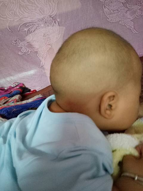 宝宝头型没睡好_短发现在9个月后脑勺自己剪宝宝视频图片