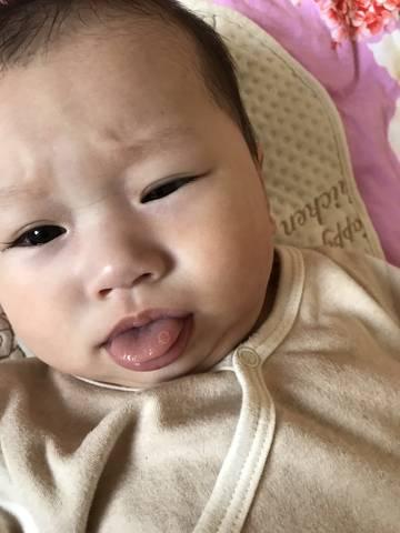 6个月宝宝舌头长溃疡怎么回事