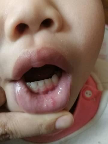 脸上有小米粒疙瘩_宝宝嘴唇里面长了好多小米粒似的痘痘,怎么回事呢?