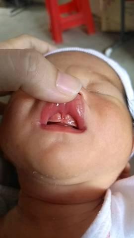 宝宝出生几天,今天发现宝宝嘴巴上牙龈鼓起来一点发白