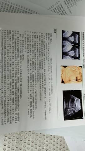 journal_insert_pic_1296544405